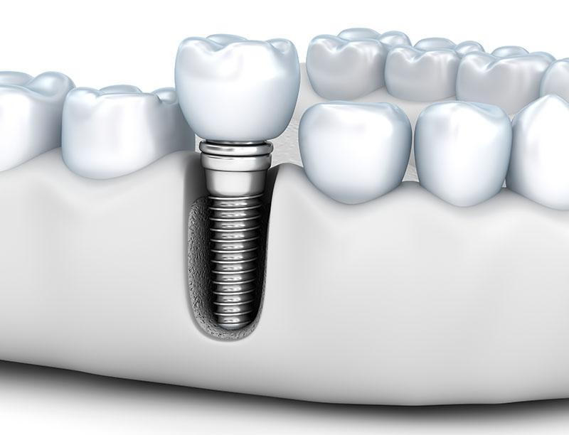próteses sobre implantes dentários