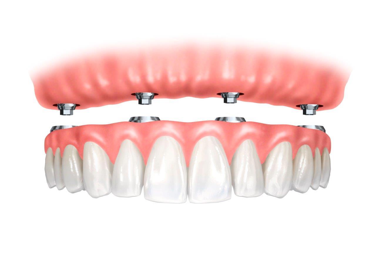 Custo de implante dentário em todos os dentes