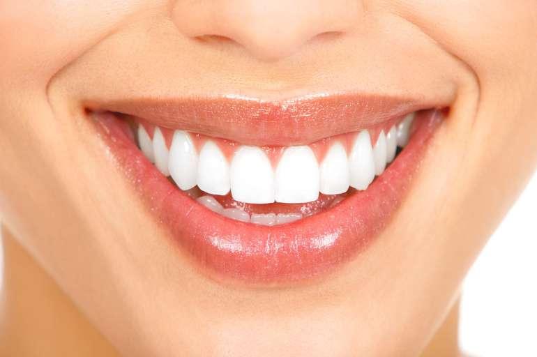 Quanto custa para tirar tártaro dos dentes?