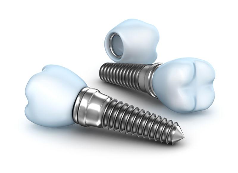 Quanto custa um implante