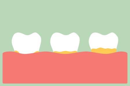 Remover placa dos dentes