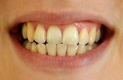 Como remover placa dos dentes