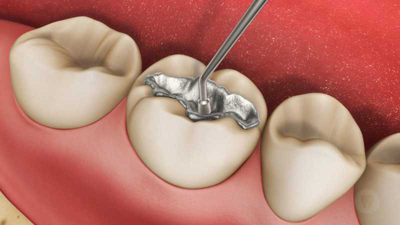 Restauração dentária