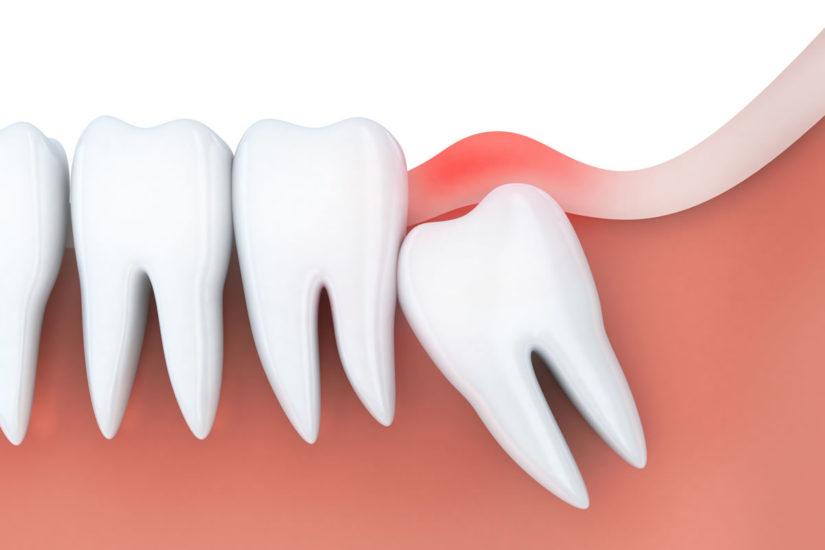 tirar dente do siso