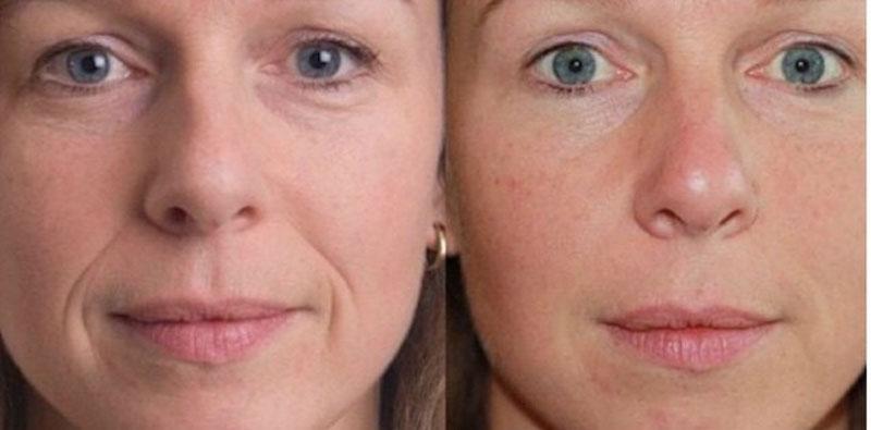 tratamento para afinar o rosto