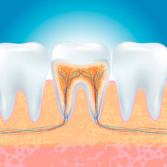 Como tratar canal dente