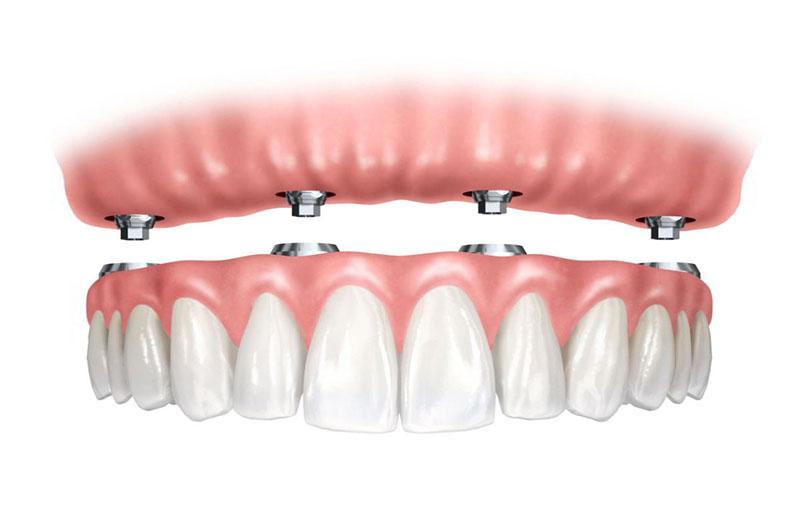 valor de implante de dente