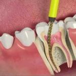 dente aberto