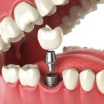 implante de dente preço
