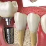 orçamento de implante dentário