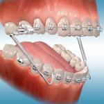 Ortodontia aparelho