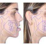 cirurgia ortognatica classe 3
