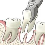 extração de dente siso