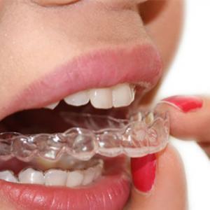 alinhador ortodontico invisivel preço