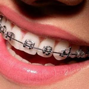 aparelho dental fixo