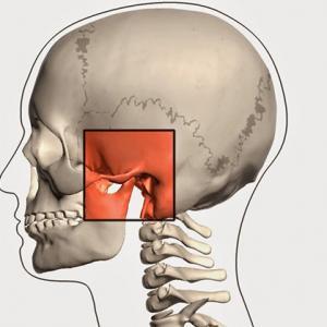 disfunção da atm sintomas