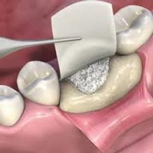 enxerto ósseo para implante dentário