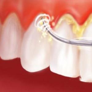 limpar tártaro dos dentes