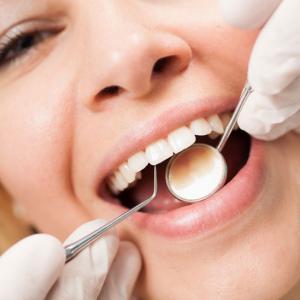 limpeza de dente valor