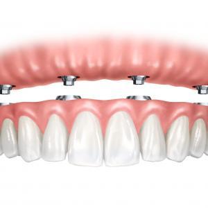 quanto custa implante dentário de todos os dentes