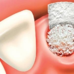 quanto custa uma extração de dente