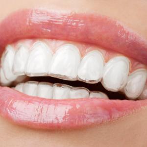 alinhador dental