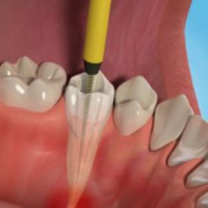 canal do dente inflamado