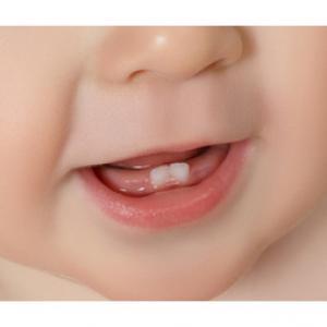 canal em dente de leite