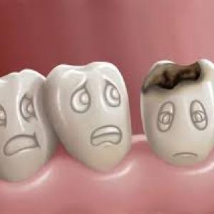 cárie no dente