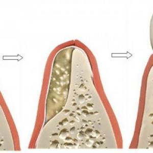 cirurgia de enxerto ósseo