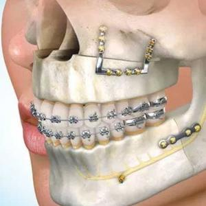 cirurgia e traumatologia buco maxilo
