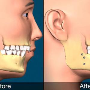 cirurgia ortognatica preço