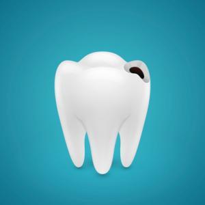 dente com cárie