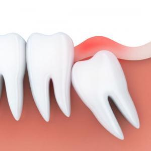 dente siso