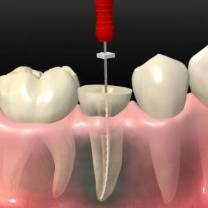 dor canal dente