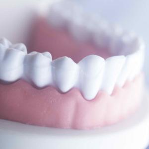 dor de dente gengiva inchada