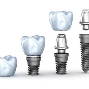 implante protocolo superior