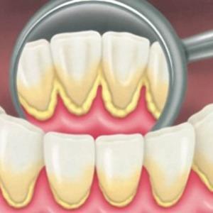 limpar tártaro dentes