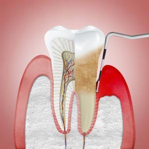 periodontite tratamento