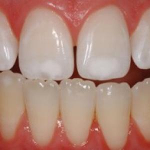 restauração dente cárie